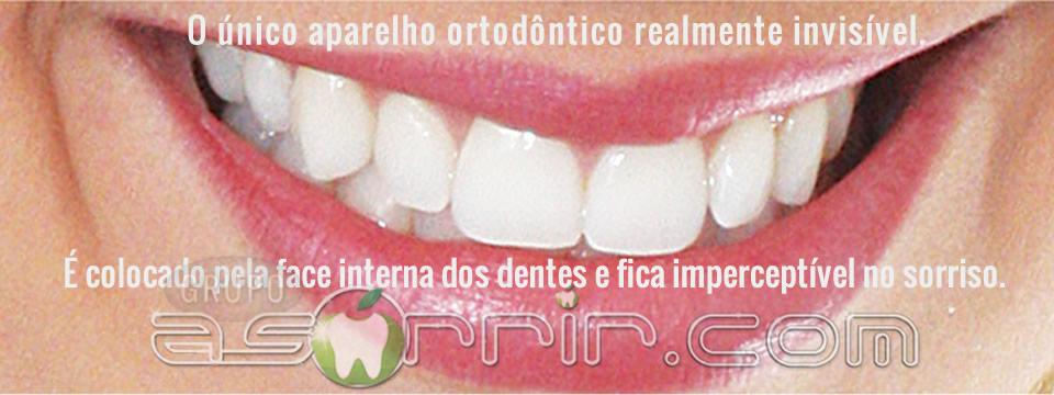 Ortodontia lingual totalmente transparente frente