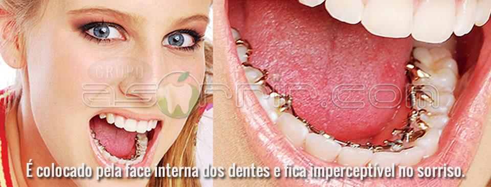 Ortodontia lingual totalmente transparente interior