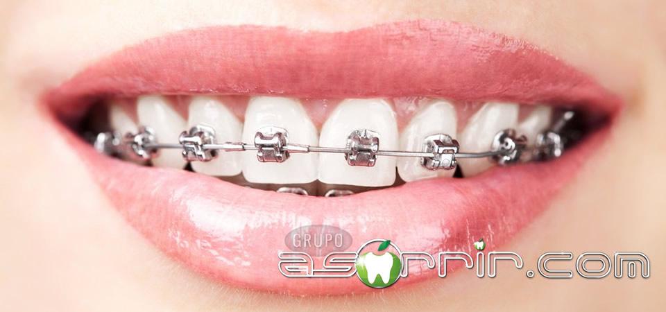 aparelho fixo aos dentes mais utilizado