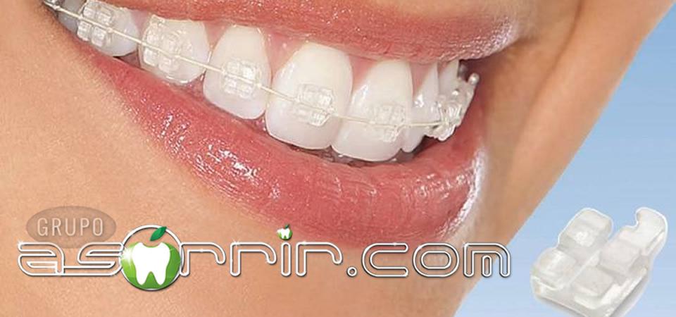 aparelho ortodontico transparente tipo 3 safira