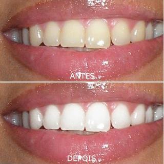 Branqueamento Dentario A Sorrir Clinicas Dentarias Em Odivelas